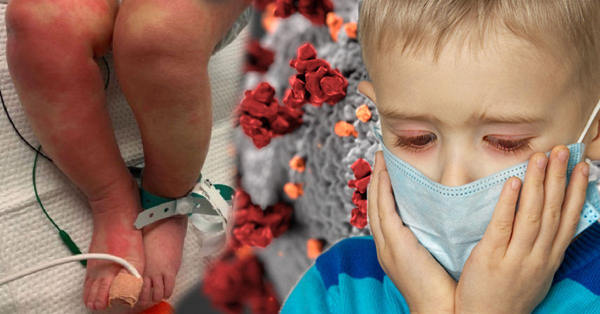 Nové ochorenie ohrozuje deti v Británii