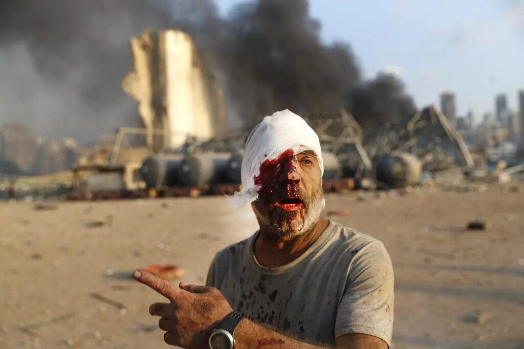 Zranený muž, Foto: Hussein Malla, ČTK/AP