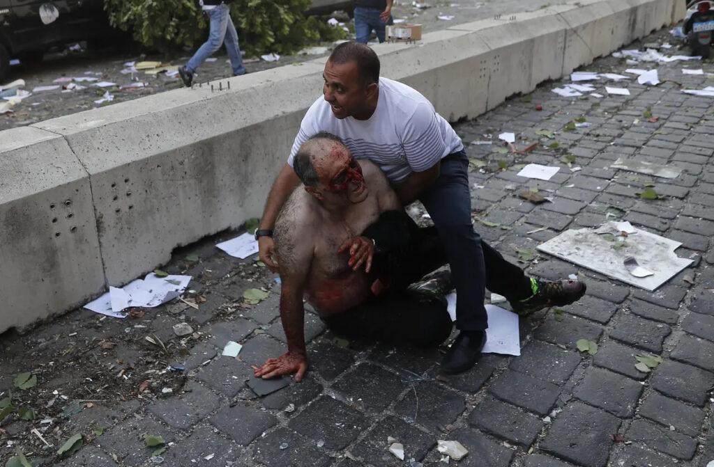 Zranení ľudia, ktprí sa pohybujú mezi ruinami a zničenými autami, Foto: Uncredited, ČTK/AP